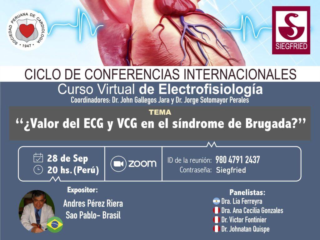 ¿Valor del EGG y VCC en el sindrome de Brugada? – Curso virtual de Electroficiología